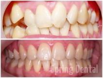 Înghesuire dentară
