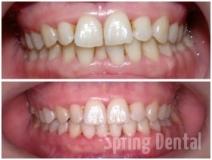 Înghesuire dinţi inferiori