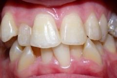 inghesuire dentara 1
