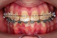 inghesuire dentara 2