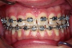 prognatism mandibular 2