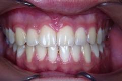 prognatism mandibular 3