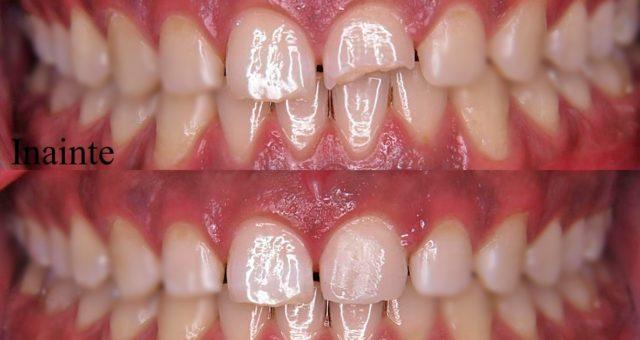 Un dinte spart nu este pierdut definitiv